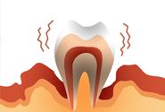 歯周基本治療のイメージ